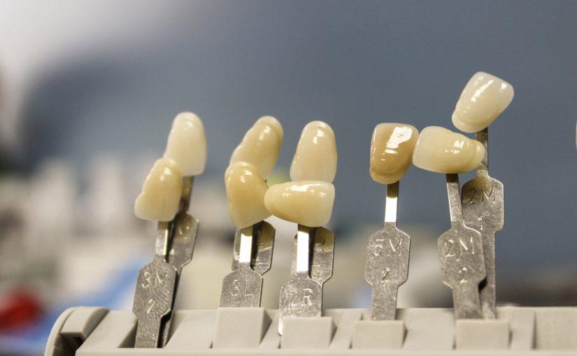 Piękne urodziwe zęby również świetny uroczy uśmieszek to powód do płenego uśmiechu.